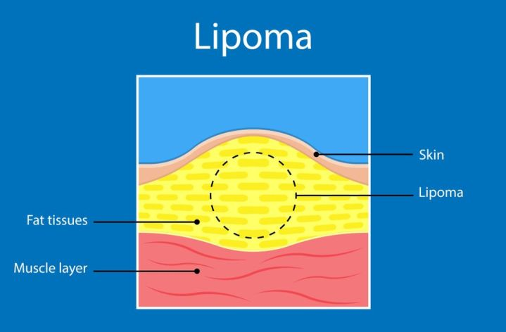 Major Symptoms and Causes of lipoma