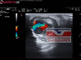 Dilatación aneurismatica con flujo en su interior.