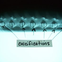 What calcifications mean