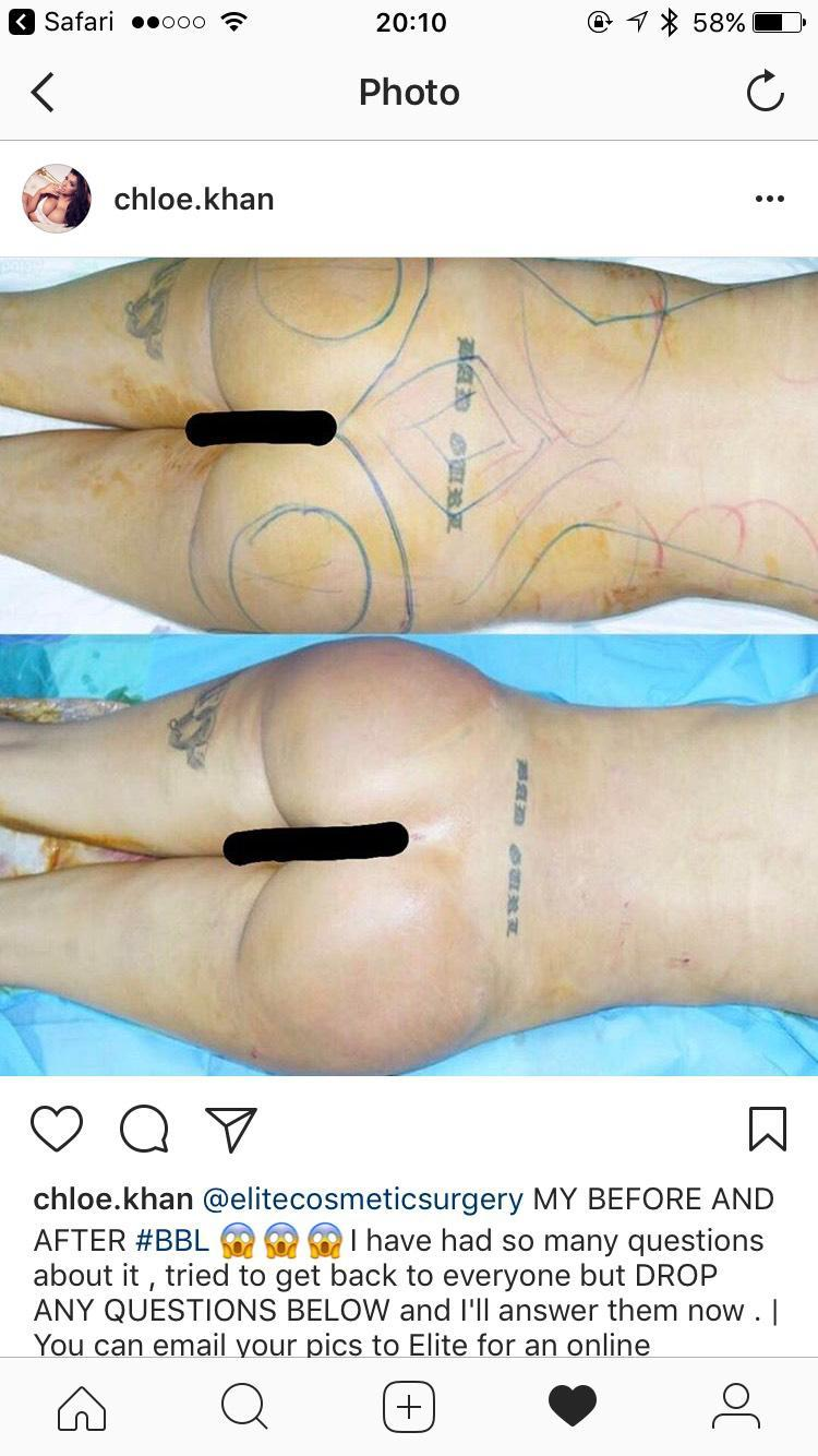 Before and After of Chloe's Surgery