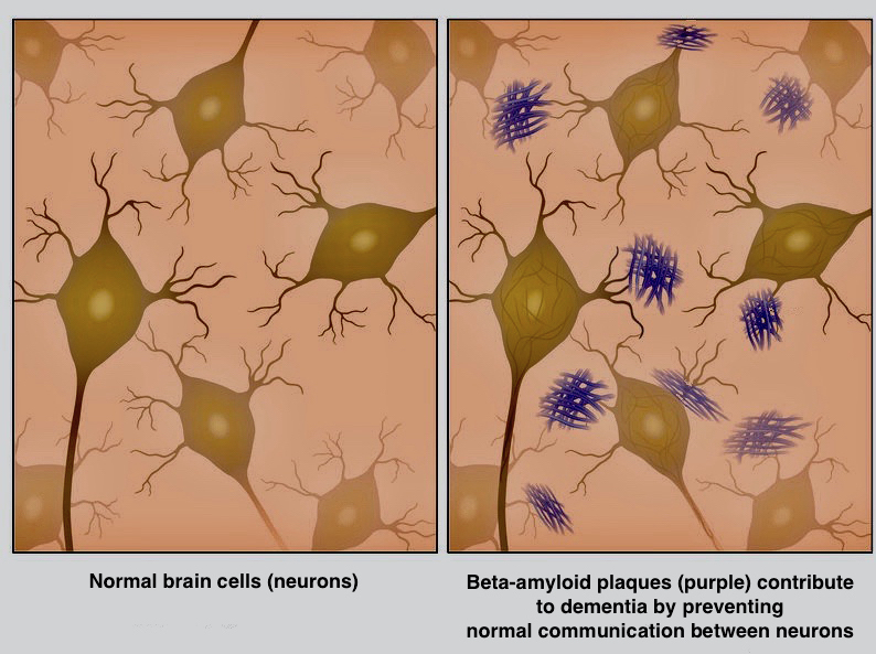 beta amyloid plaques in brain