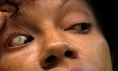 Une Jeune Femme ,perd,vue ,mis , Lentilles De Contact