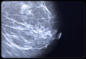 Breast Cancer Malpractice Lawyer NJ: Image of Breast Tumor