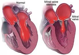 mitral-stenosis-lg.jpg
