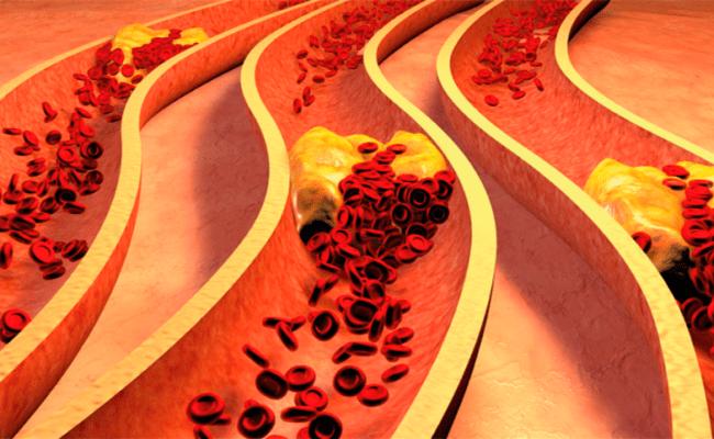 Dislipidemia Gejala Penyebab Cara Mengobati Dokter Sehat