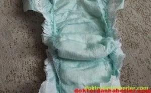 Diaper Dermatiti-Çocuk Bezi Dermatiti