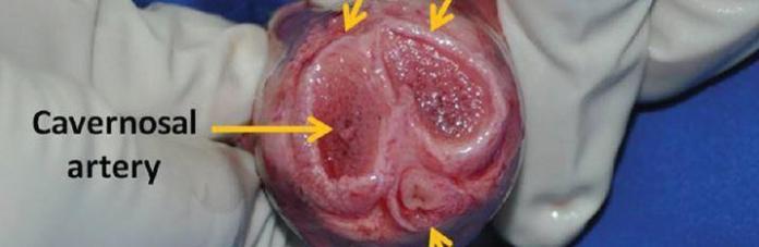 erektil-disfonksiyon-korpus-kavernozum
