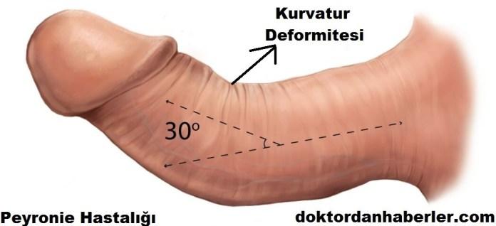 Peyronie'de görülen kurvatur yani eğrilik deformitesi.