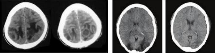 beyinde hipodens lezyon gorulmesi