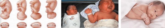fetal makrozomi neden olur