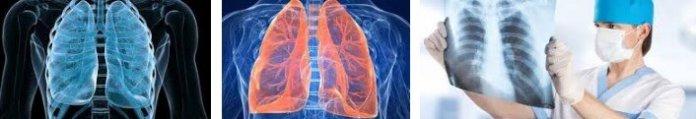 gogus cerrahisi hangi hastaliklara bakar