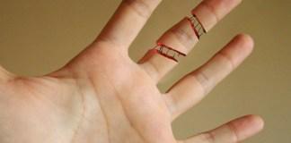 parmak kirigi ne zaman iyilesir
