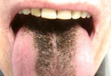 dilde siyah leke neden olur nasil gecer