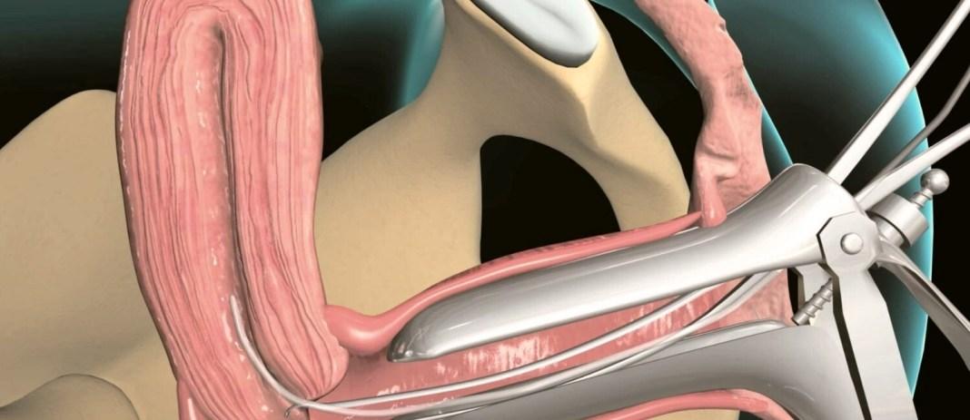 pipelle biyopsi nedir