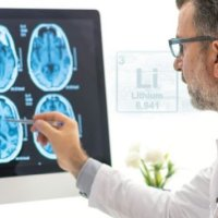 Lithium and Alzheimer's Risk
