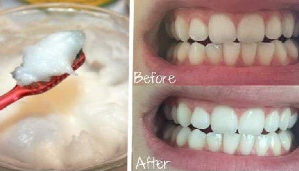 Svako jutro, 10 dana jedna kašika i SPASIT ĆETE zube! Jedna namirnica za PREDIVAN osmijeh!
