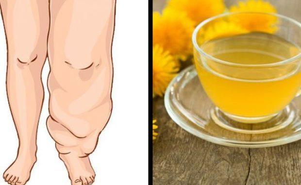 Ovih deset namirnica će vas osloboditi viška vode u tijelu: Probajte ove prirodne diuretike