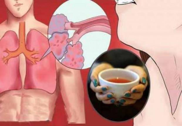 Izbacite šlajm iz pluća i sekret iz sinusa pomoću ovog prirodnog napitka!