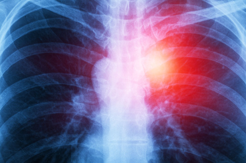 Mesothelioma is a serious cancer caused by exposure to asbestos. Mesothelioma Lawyers | The Dominguez Firm
