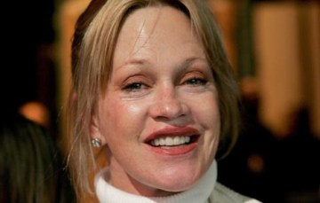 womanchirurgiemelaniegriffith14402514