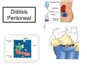 dialisisperitoneal-151205193637-lva1-app6892-thumbnail-4