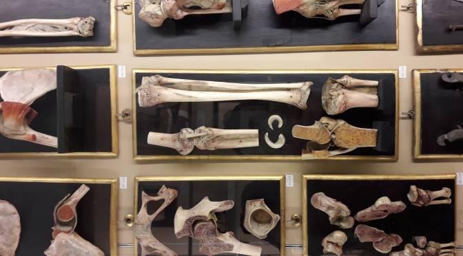"""Il Museo del mese di Aprile: la Collezione delle Cere Anatomiche """"Luigi Cattaneo"""""""