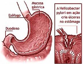 Tratamento de Gastrite