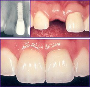 Implante Dentário Preços Implante Dentário – Preços