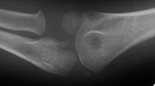 AP elbow x-ray