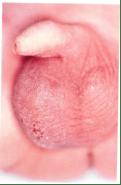 perinatal torsion