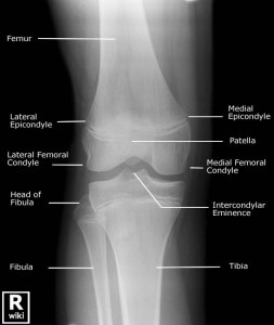 Knee x rays from httpwikiradiography ccuart Choice Image