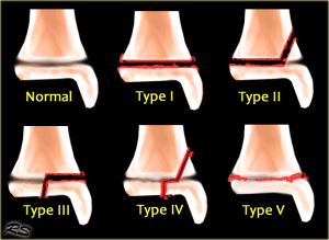 Salter-Harris classification (from Radiology Assistant)
