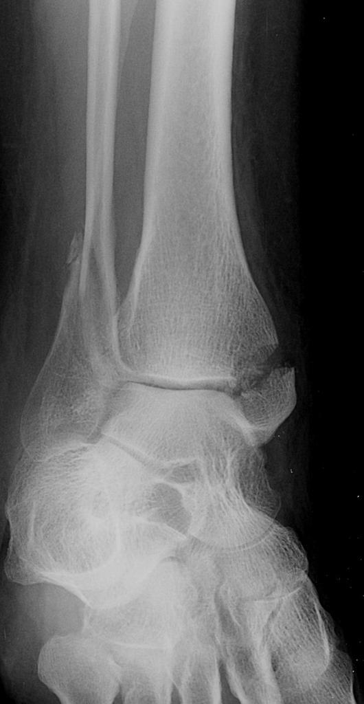 Ankle x-rays – Don't Forget the Bubbles