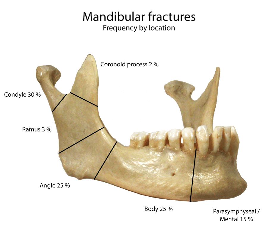 Mandible x-rays