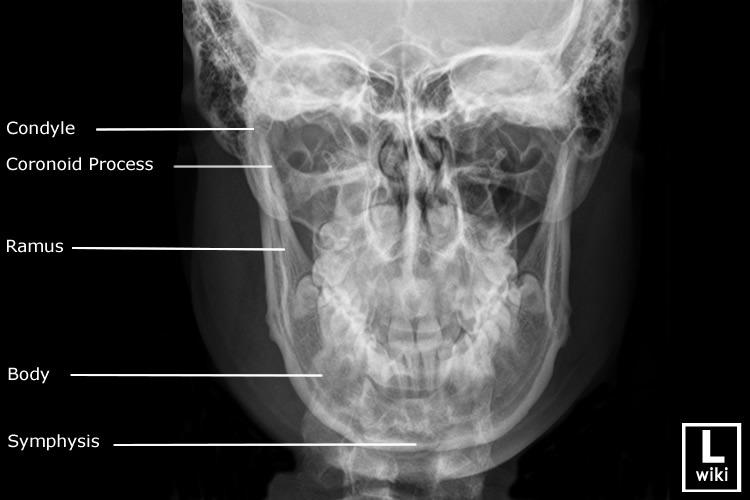 Facial xray exam views