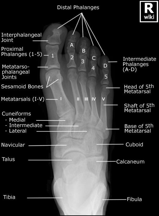 Foot X Rays