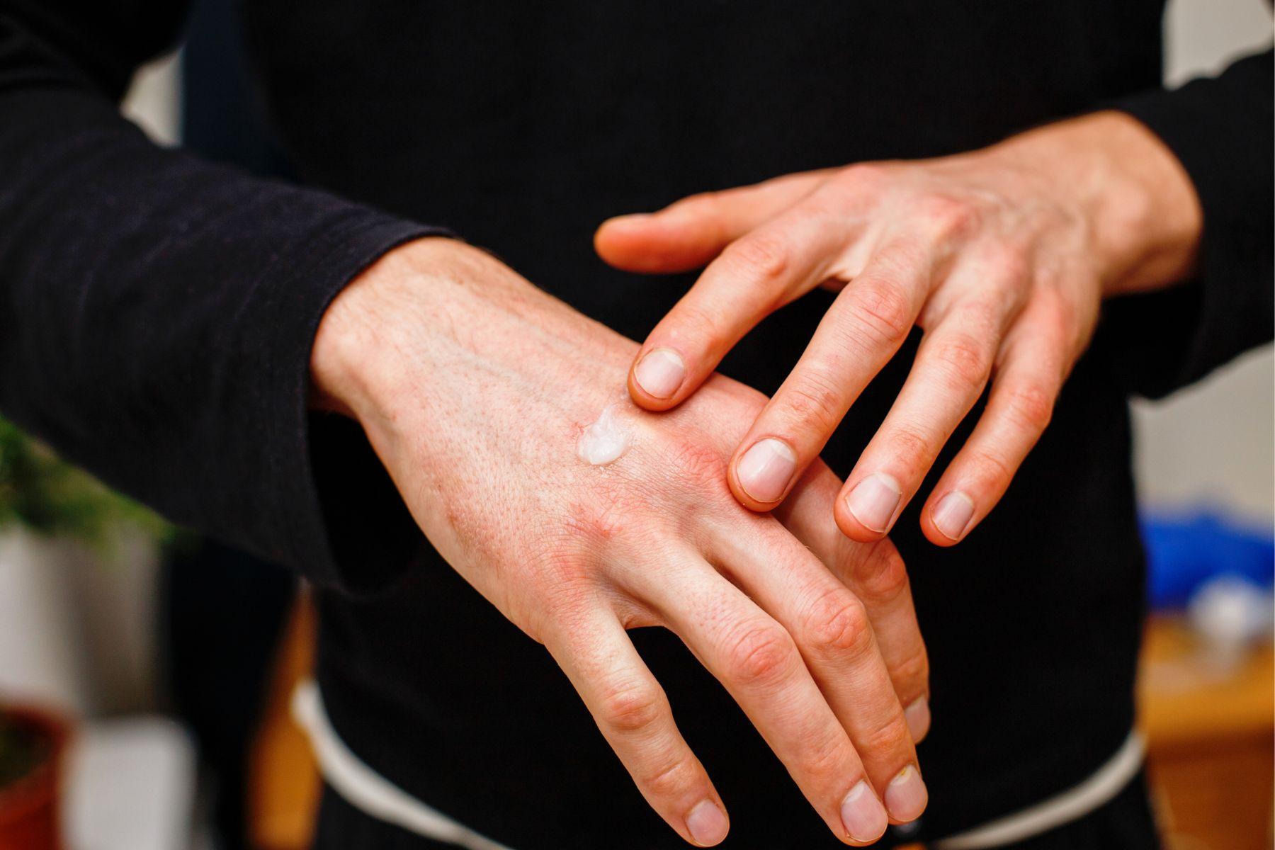 濕疹是因缺乏維生素D?藥師證實:除了擦藥還能吃6食物消除皮膚癢! - 今周刊