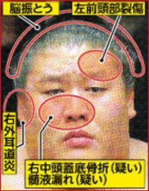 貴ノ岩,怪我してない,怪我,嘘,画像,検証