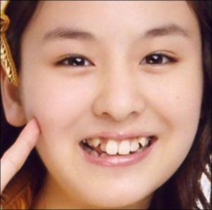 鈴木愛理の昔の歯並びの画像
