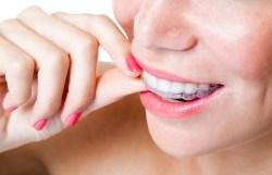 Invisalign | Dores Dental - Longmeadow, MA Dentist