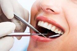 Dental Cleanings & Exams 3 | Dores Dental - Longmeadow, MA