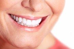 Teeth Whitening 1 | Dores Dental - Longmeadow, MA