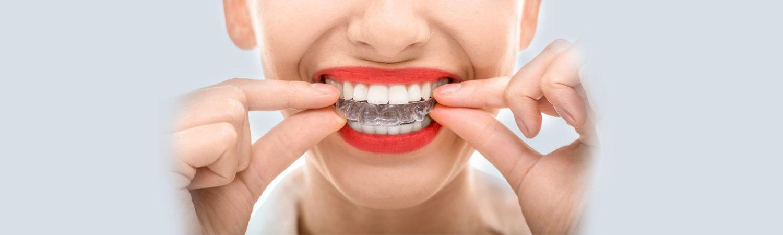 Invisalign Longmeadow, MA Dentist | Dores Dental