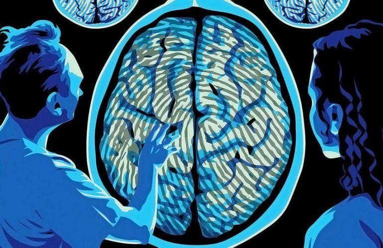 5 губительных привычек для мозга