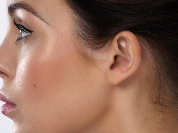 Растительность на лице у женщин
