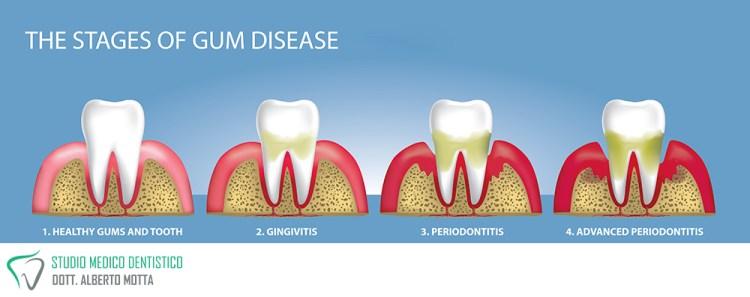 Le patologie che cura la parodontologia, parodontite, gengivite, piorrea