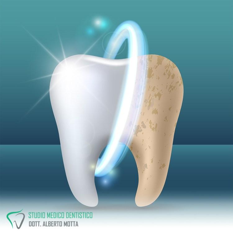 Lo sbiancamento dentale con laserterapia