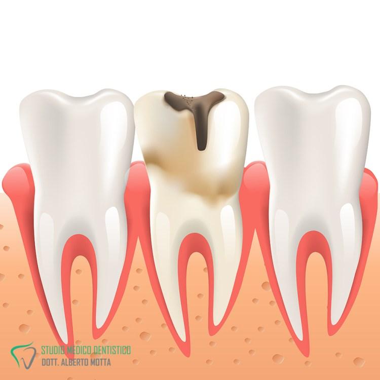 Immagine di un dente con carie dentale
