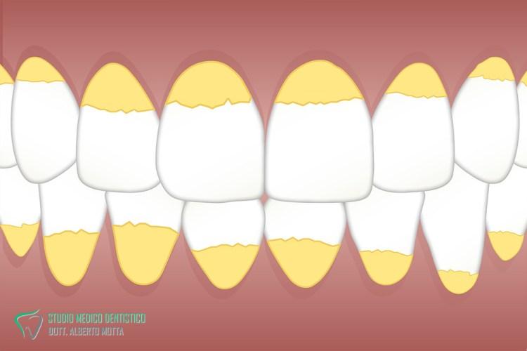 Pulizia denti per rimuovere placca e tartaro. Immagine dei depositi di placca e tartaro