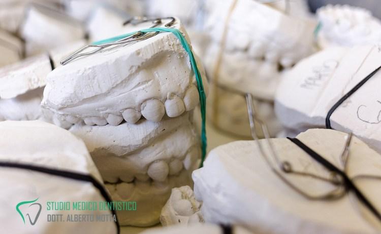 Protesi dentale, tutte le strutture e le impronte